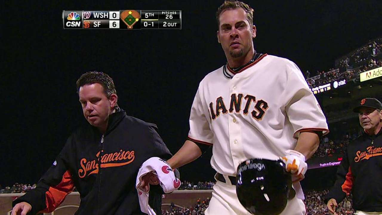 Vogelsong out four to six weeks with broken hand