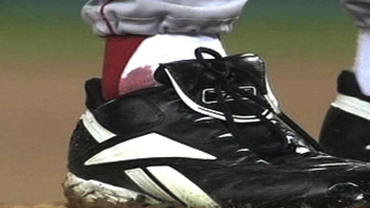 'Bloody Sock' should be on display in Hall of Fame