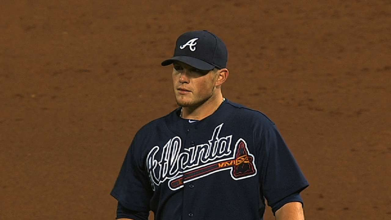 Braves' workload examined with elbow issues