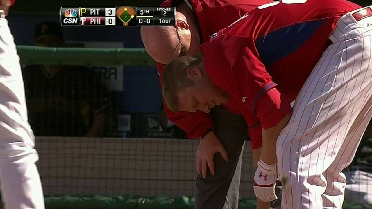 Asche sustains bruise after being hit on hand