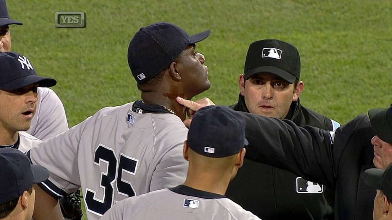 Pineda ejected for having pine tar on neck