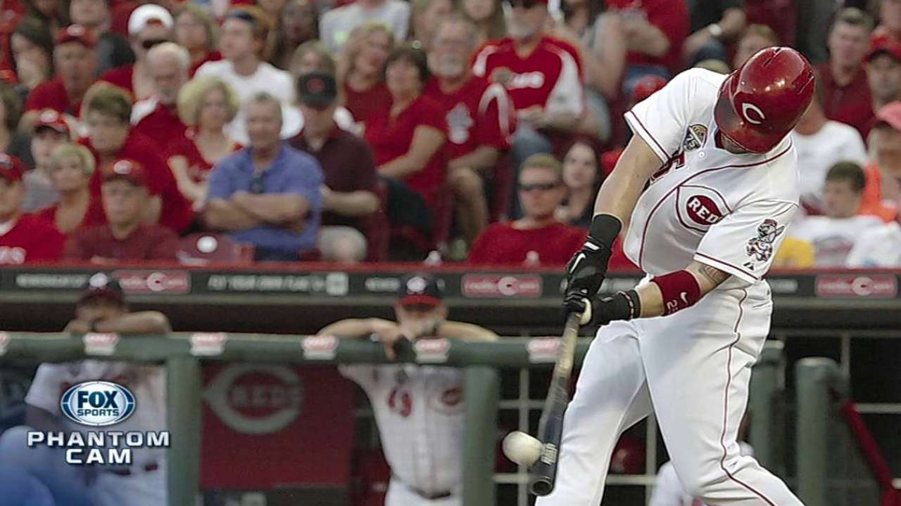 Schumaker passes concussion test, awaits clearance