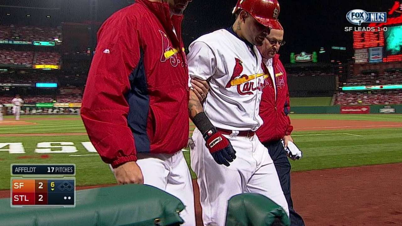 Molina exits with oblique strain