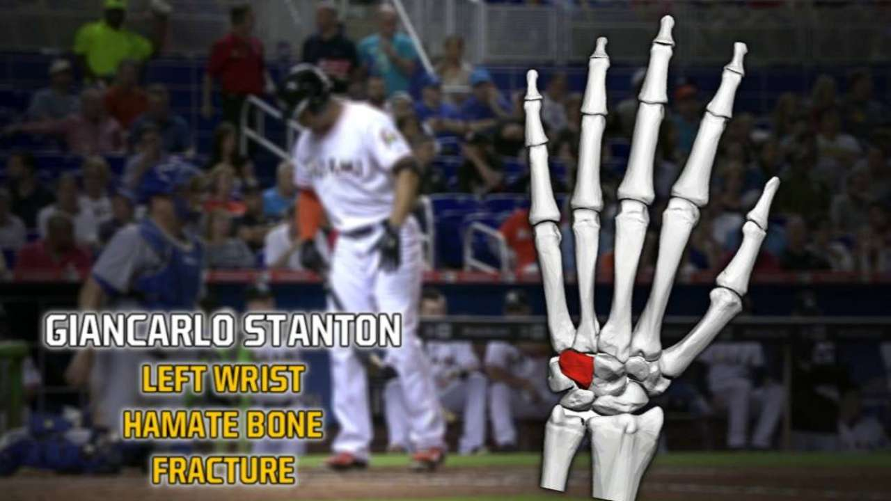 Doctor clears Stanton to take dry swings