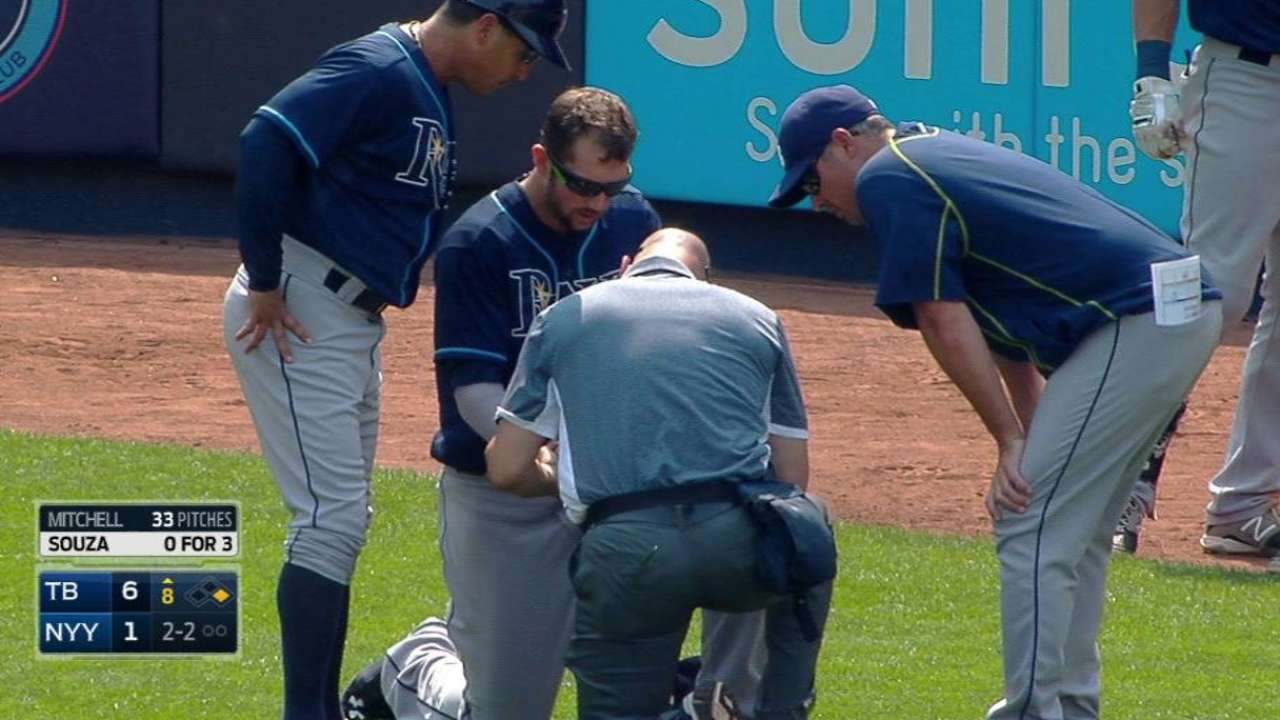 Souza requires stitches after pitch hits hand