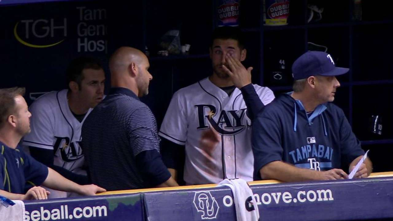Kiermaier exits with minor eye abrasion
