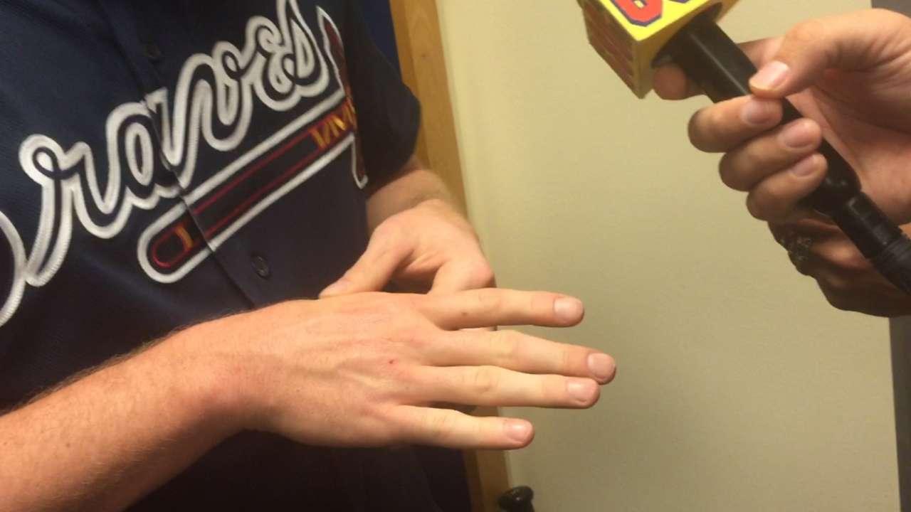 Initial worries gone as Freeman's wrist OK