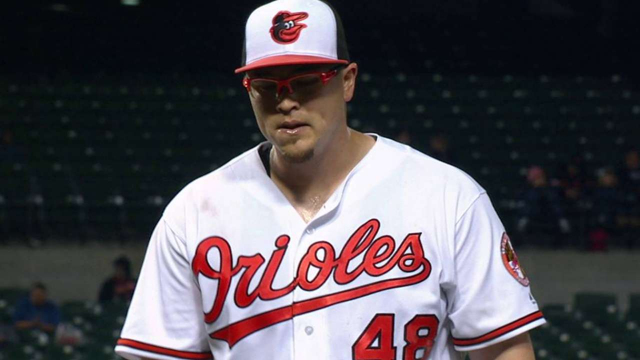 Pitching without pain, Worley could return Tuesday