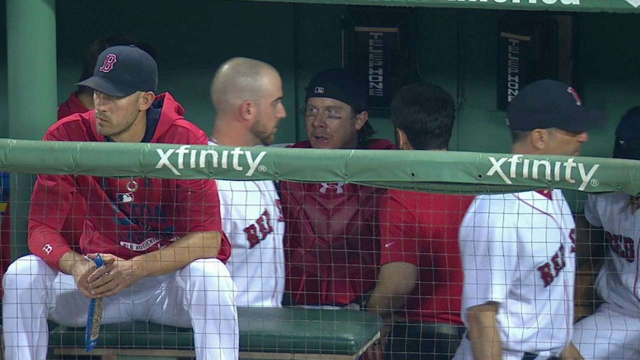 Hanigan exits the game