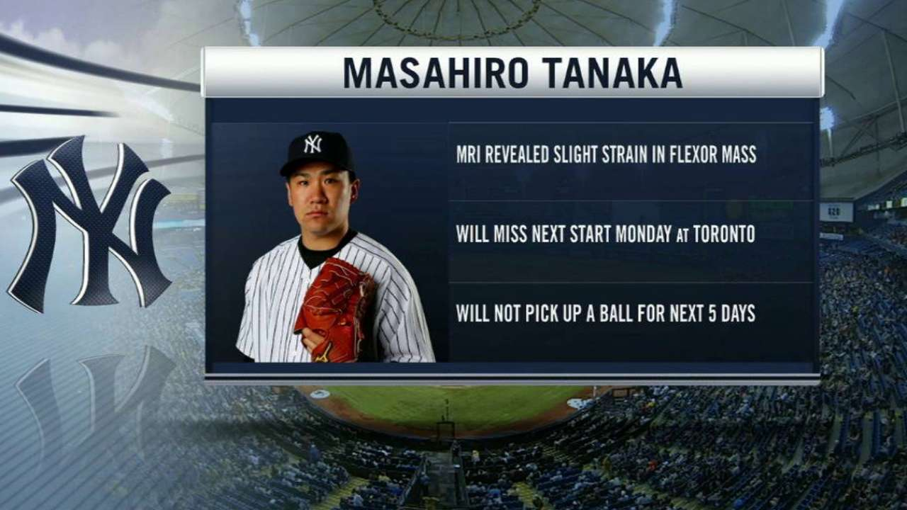 Tanaka injury update