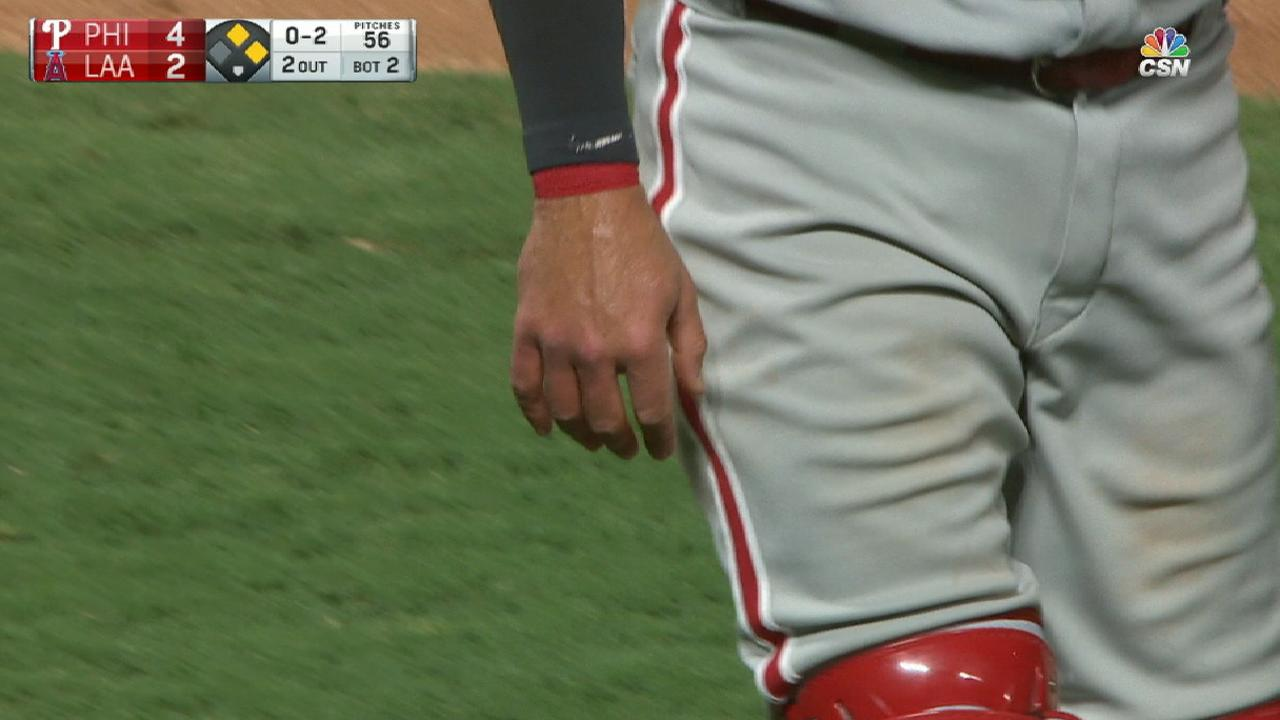 Knapp day to day after taking foul ball off hand